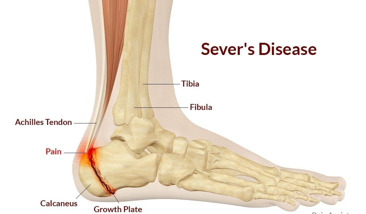 Sore Feet Images 13